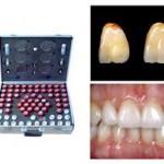 stomatoloski_materijal